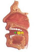颊里穴(颊内穴)