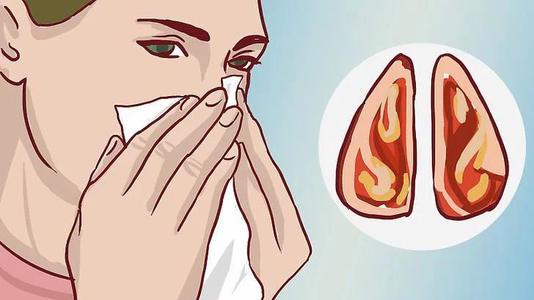 鼻塞怎么办 不妨试一试缓解鼻塞的6个小偏方
