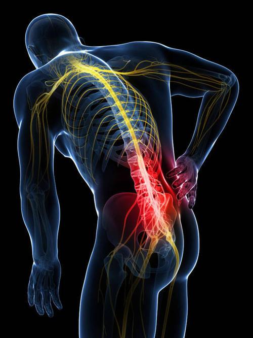 急性腰扭伤中药方剂