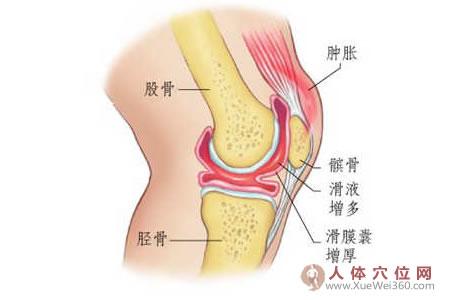 用本偏方治新旧关节积液半月可痊愈