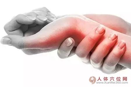 我两手腕患腱鞘炎多年,仅用姜片烤灸50天痊愈