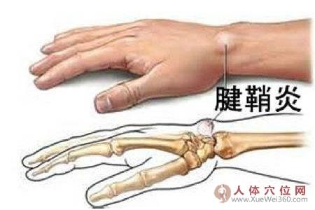 腱鞘炎的防治要点