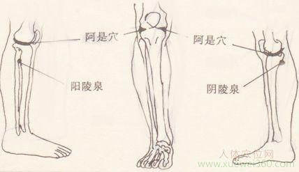 拔罐治疗膝关节半月板损伤