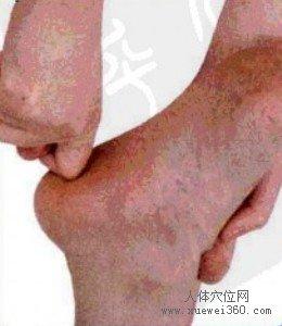 脚底穴位图(脚底反射区)--生殖腺按摩